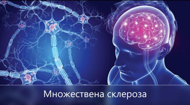 Множествена склероза и канабидиол